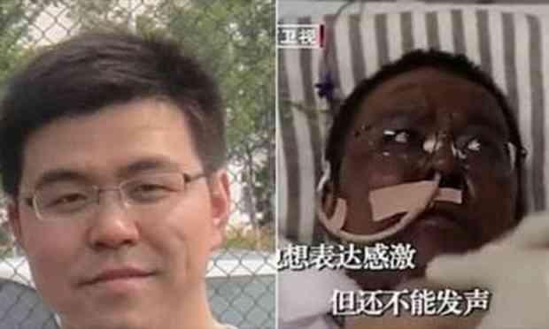 Médico de Wuhan que ficou com pele escura por causa de COVID-19 morre na China